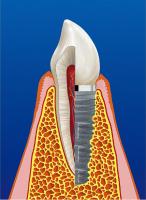Oralchirurgie/Implantologie
