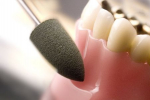 KENDA Polierer für alle dentalen...